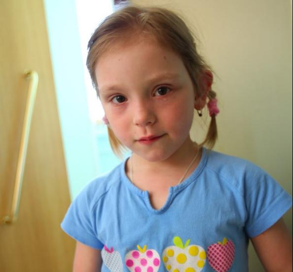 Маленькой Лизе Багаевой срочно нужны противогрибковые препараты