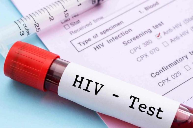В Троицко-Печорском районе осужден мужчина, подвергший сожительницу опасности заражения ВИЧ